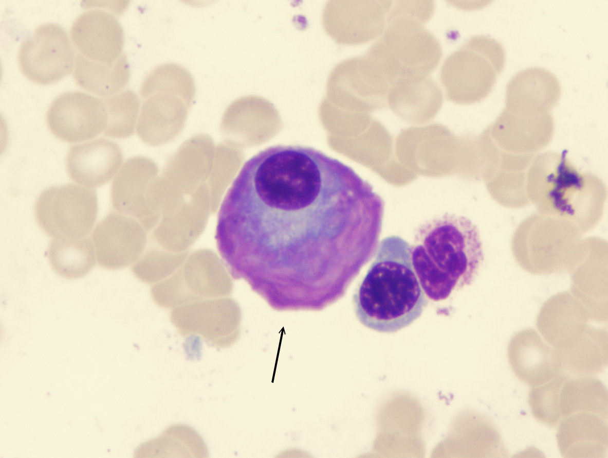 multiple-myeloma-flame-shaped-plasma-cell-100x5-website-arrow